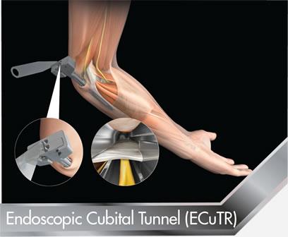 Endoscopic-Cubital-Tunnel-ECuTR