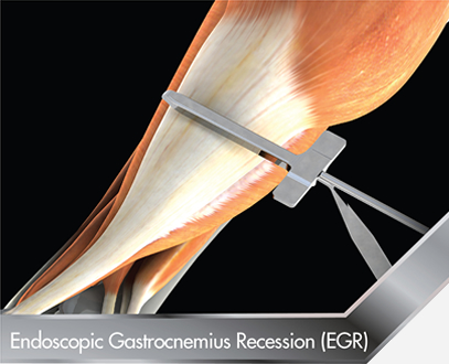 Endoscopic-Gastrocnemius-Recession-EGR