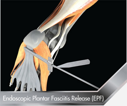Endoscopic-Plantar-Fasciitis-Release-EPF