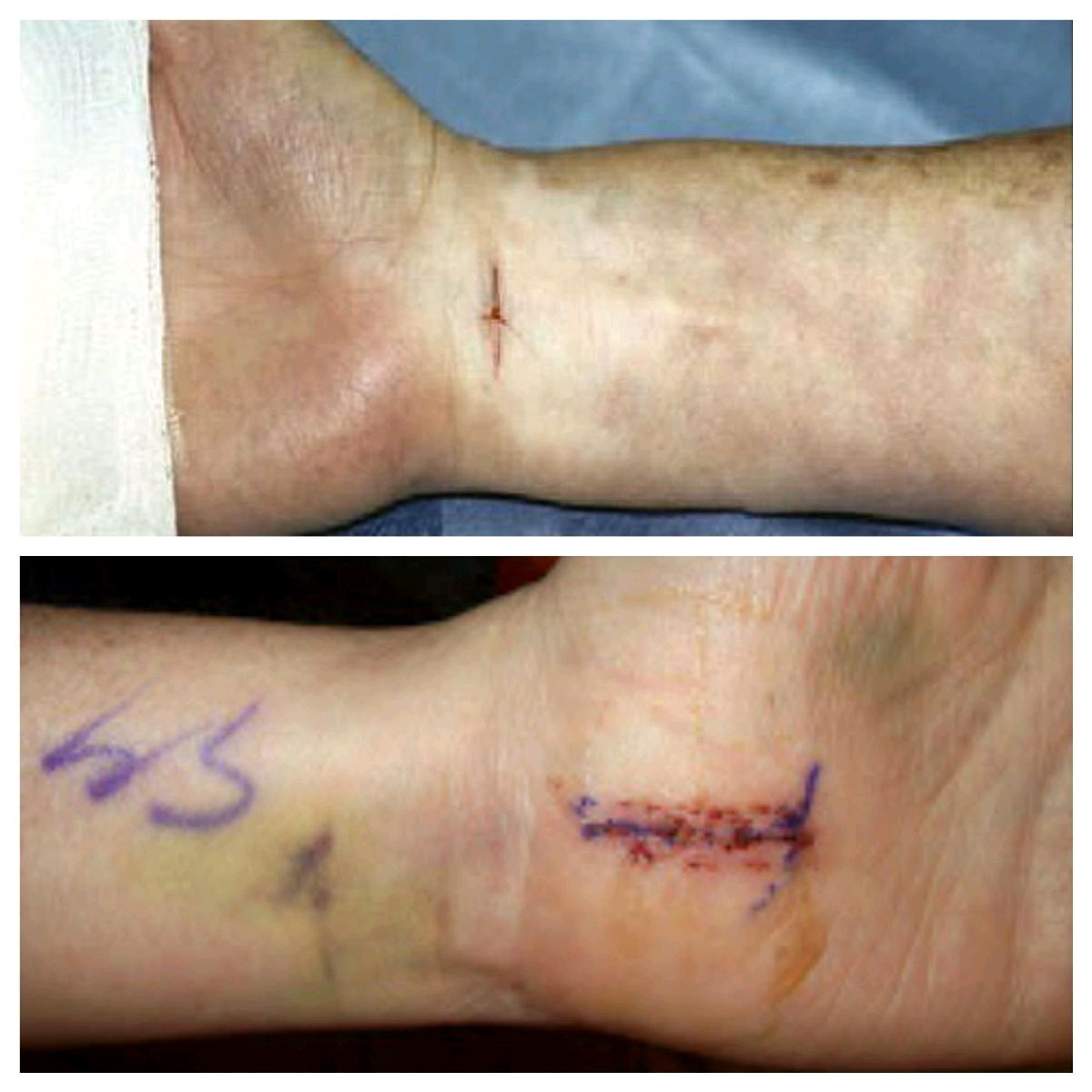 Open vs Endo Incisions